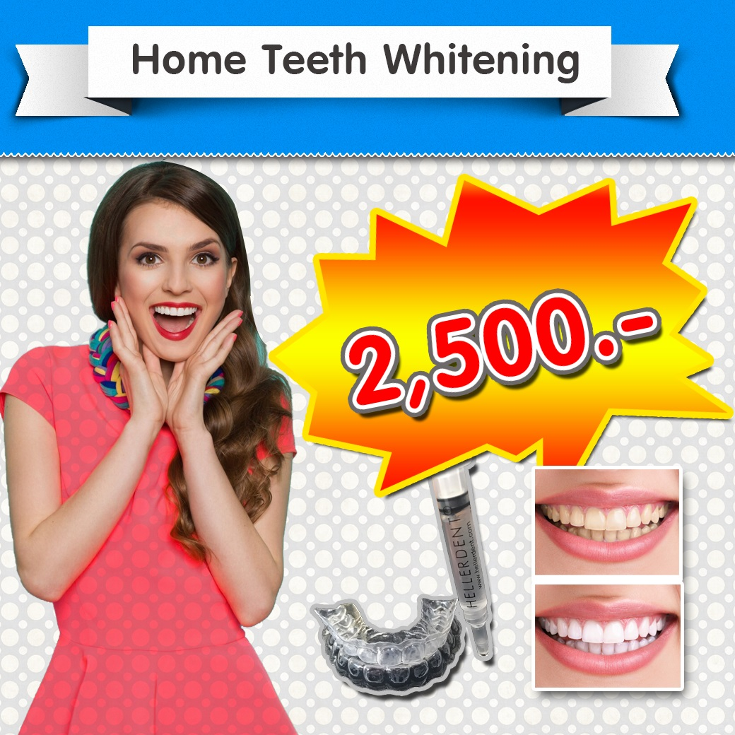 attaya Dental Clinic - Promotion - Home Teeth Whitening