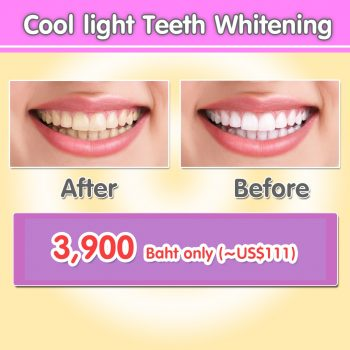 Pattaya Dental Clinic - Promotion - Coolight