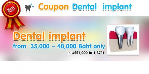 Dental implant2